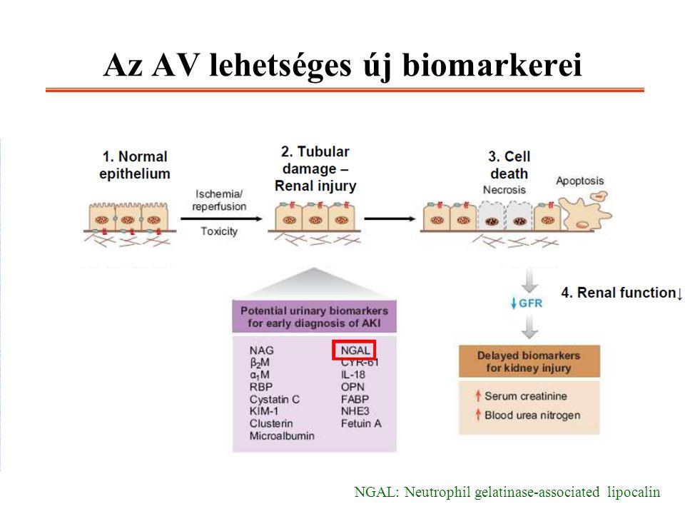 Az AV lehetséges új biomarkerei NGAL: Neutrophil gelatinase-associated lipocalin