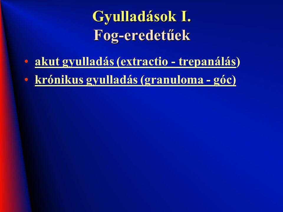 Gyulladások I. Fog-eredetűek akut gyulladás (extractio - trepanálás) krónikus gyulladás (granuloma - góc)