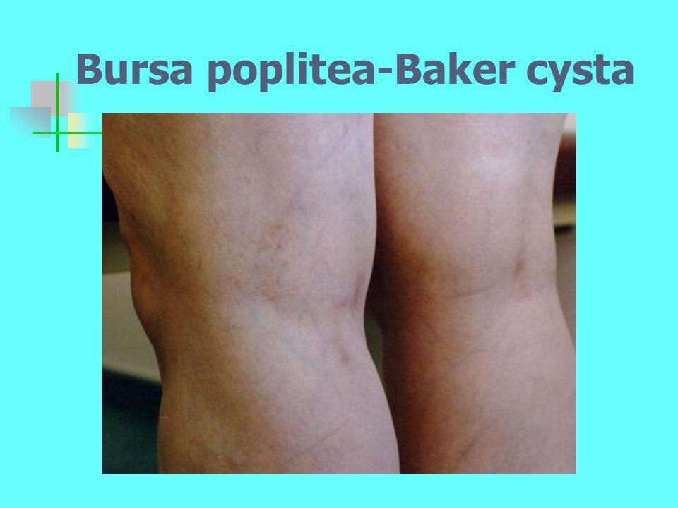Bursa poplitea-Baker cysta
