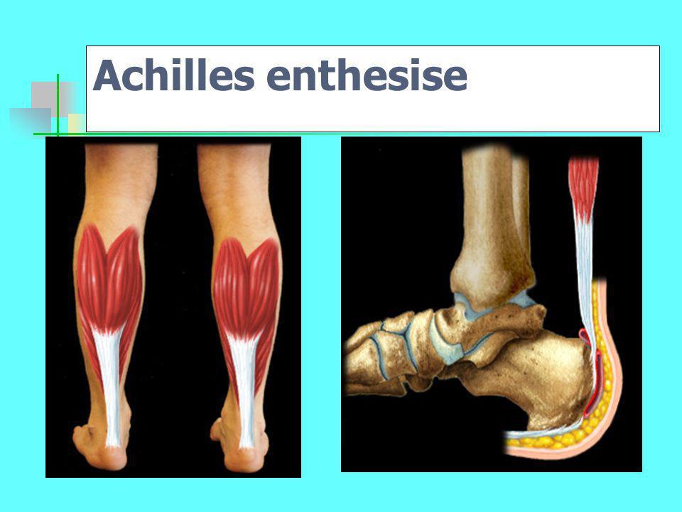 Achilles enthesise