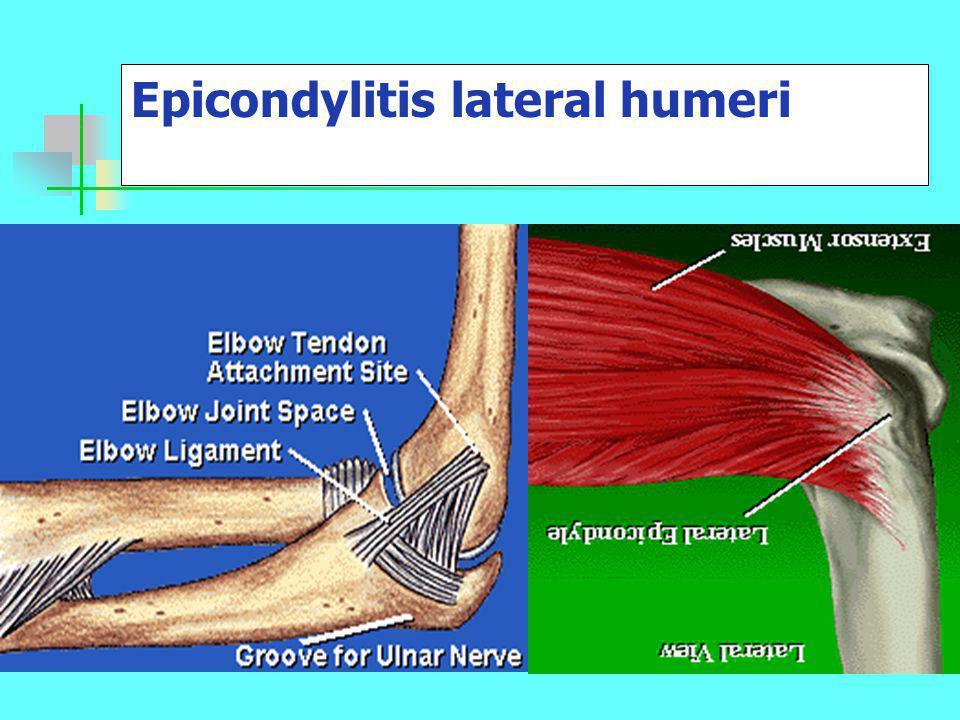 A különböző lágyrészek diagnózisa Capsula: - fájdalom aktív, passzív mozgásnál -fájdalmas end-feel korlátozott ROM -az ellenállásos mozgás nem vált ki fájdalmat