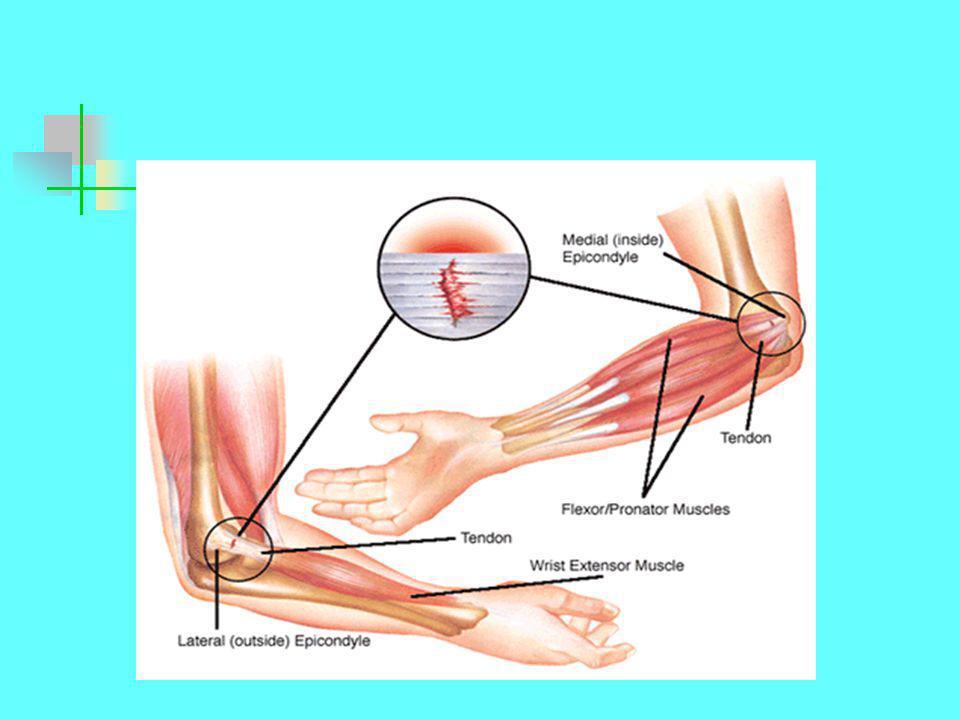 Izom eredetű probléma  A passzív mozgás az aktívval ellentétes irányban fájdalmas  Az ellenállásos mozgás fájdalmas  Az aktív mozgás egy adott irányban fájdalmas