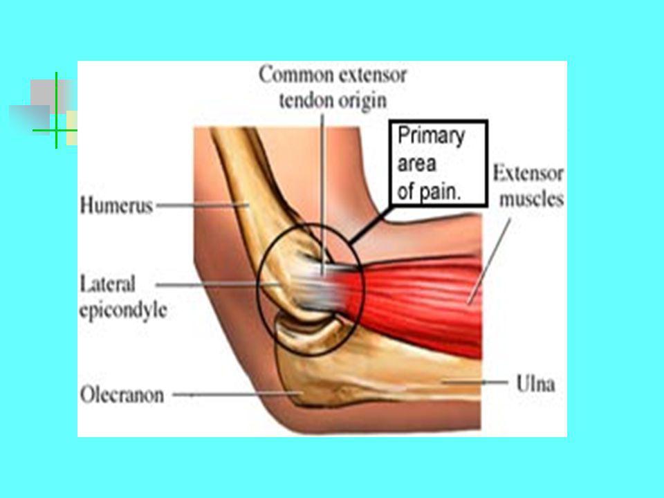 Szalag eredetű probléma  A mozgásterjedelem csökken  Ellenállással szemben nincs fájdalom  Teljes laesiónál erős fájdalom és hypermobilitás