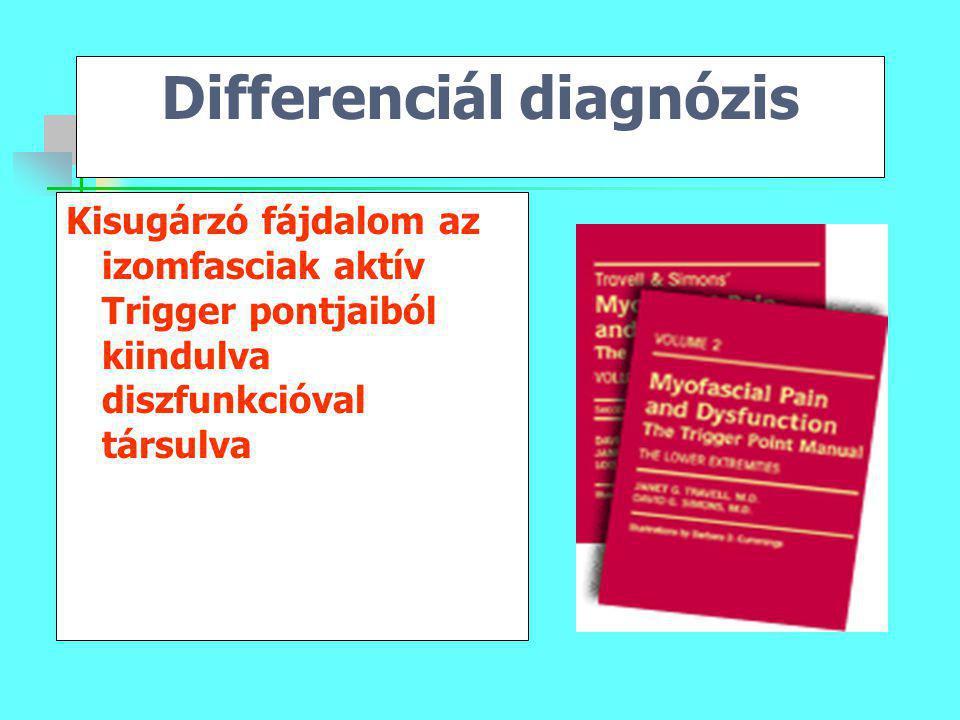 Differenciál diagnózis Kisugárzó fájdalom az izomfasciak aktív Trigger pontjaiból kiindulva diszfunkcióval társulva