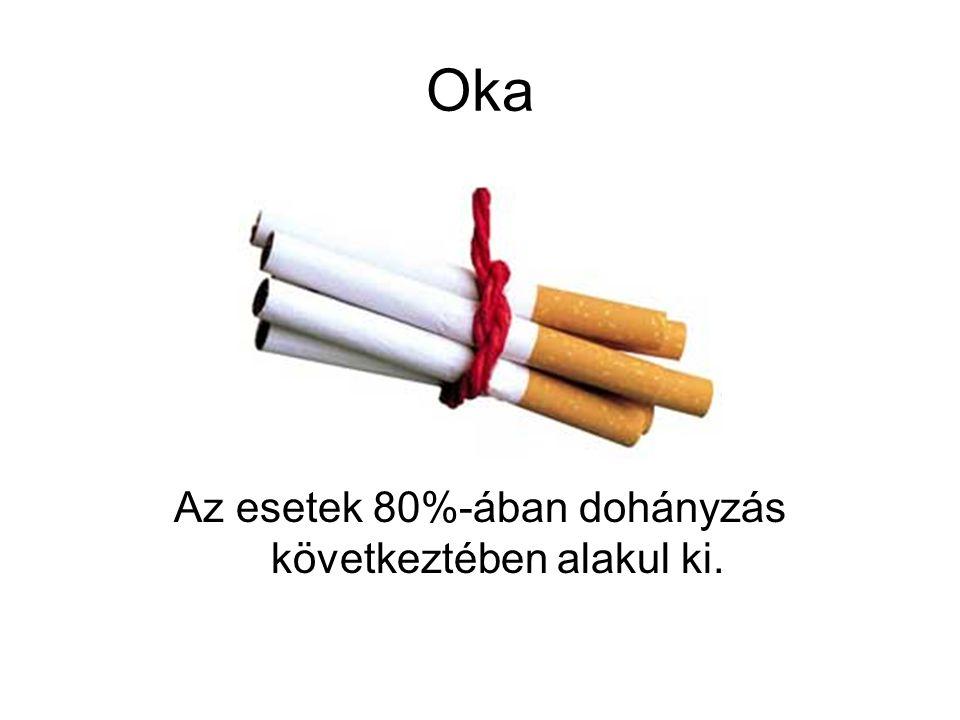 Oka Az esetek 80%-ában dohányzás következtében alakul ki.