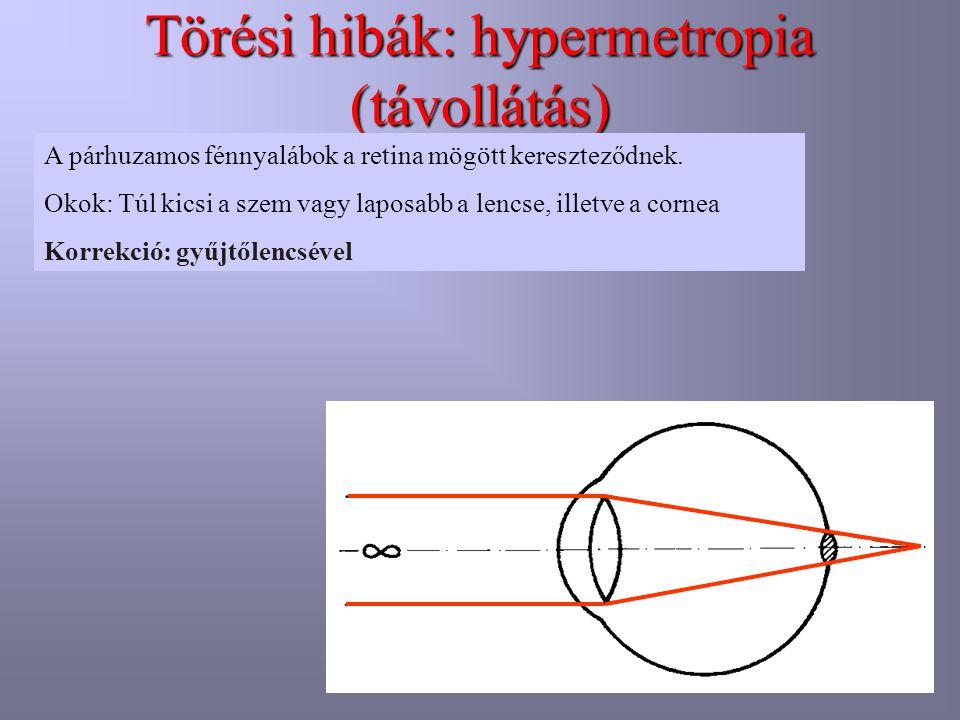 Törési hibák: hypermetropia (távollátás) A párhuzamos fénnyalábok a retina mögött kereszteződnek. Okok: Túl kicsi a szem vagy laposabb a lencse, illet