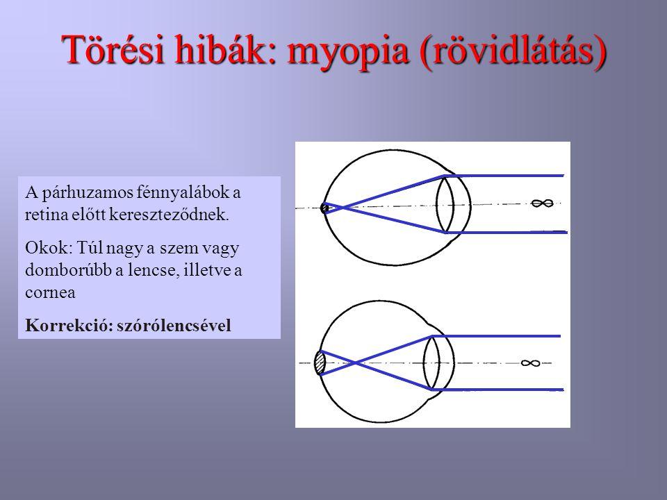 Törési hibák: myopia (rövidlátás) A párhuzamos fénnyalábok a retina előtt kereszteződnek. Okok: Túl nagy a szem vagy domborúbb a lencse, illetve a cor