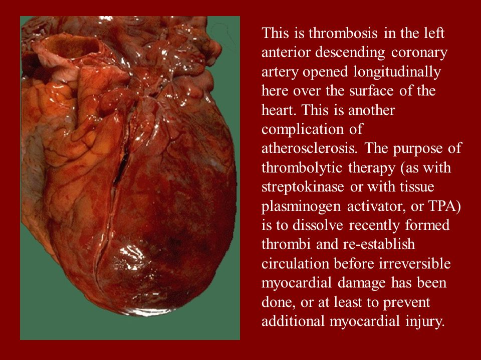 This is thrombosis in the left anterior descending coronary artery opened longitudinally here over the surface of the heart.