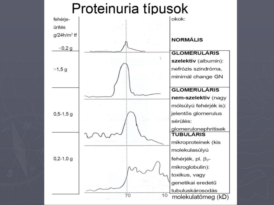 Fehérjekimutatás ► gyorsteszt:  brómfenolkék indikátor sárgából zöldeskékre vált savas pH-n, fehérje jelenlétében  250-300 mg/l koncentráció felett  elsősorban albuminra érzékeny ► elektroforézis:  Bence-Jones proteinuria gyanúja esetén ► szulfoszalicilsavas próba:  savanyított vizelet fehérjetartalma a szulfoszalicilsav hatására kicsapódik  értékelés: nyomokbanopaleszkál (sötét háttér előtt) + észrevehető zavarosodás ++ kifejezett zavarosodás +++ pelyhes csapadék ++++ túrós csapadék