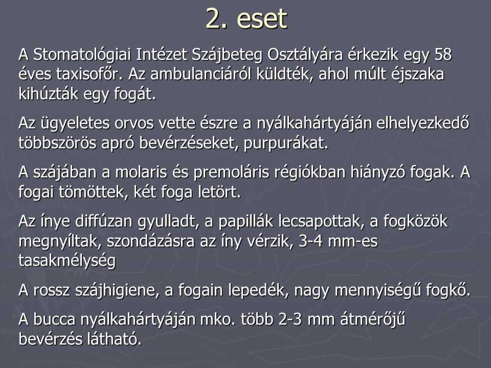 2.eset Belgyógyászati vizsgálat Anamnézis: kb.