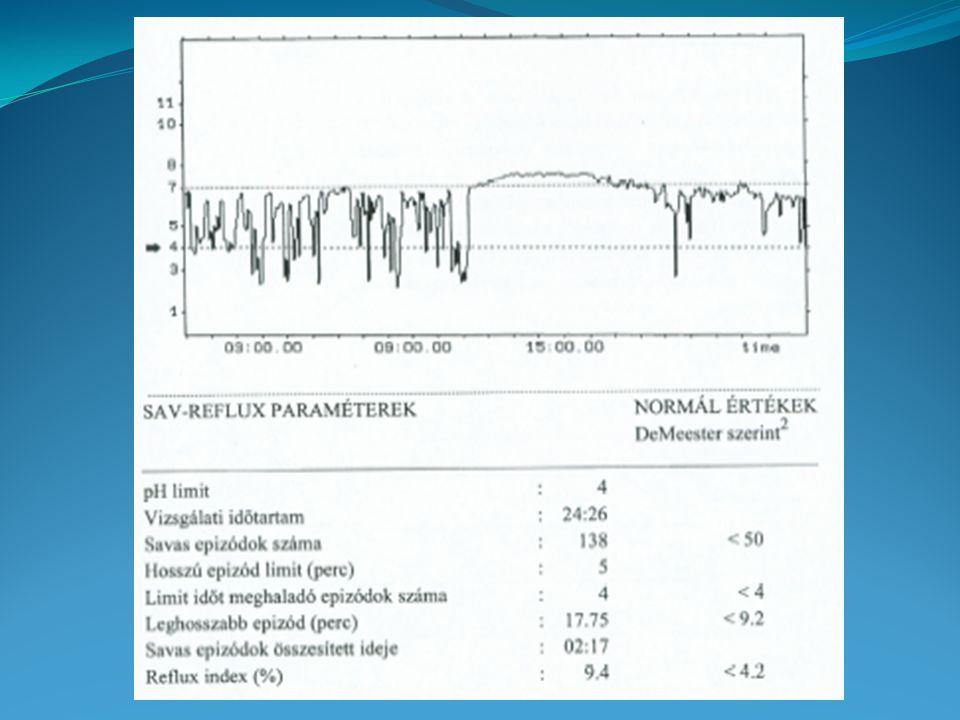 A gyomor működésének vizsgálata 1.c.Maximális savürítés (MAO) Éhhomi bennék eltávolítása után sc.