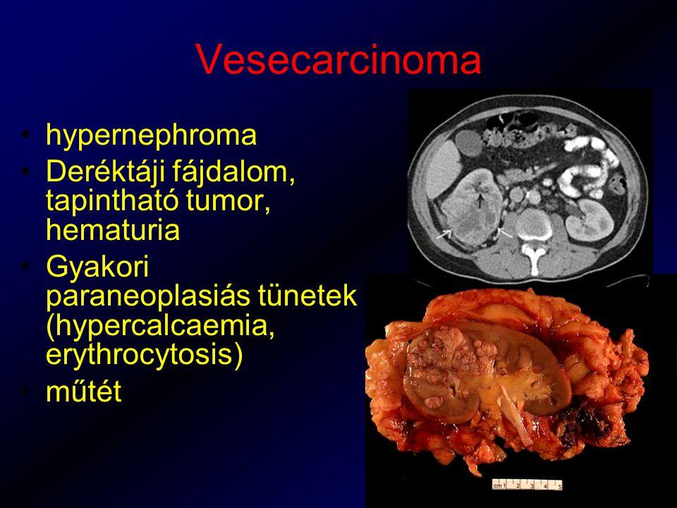 Vesecarcinoma hypernephroma Deréktáji fájdalom, tapintható tumor, hematuria Gyakori paraneoplasiás tünetek (hypercalcaemia, erythrocytosis) műtét