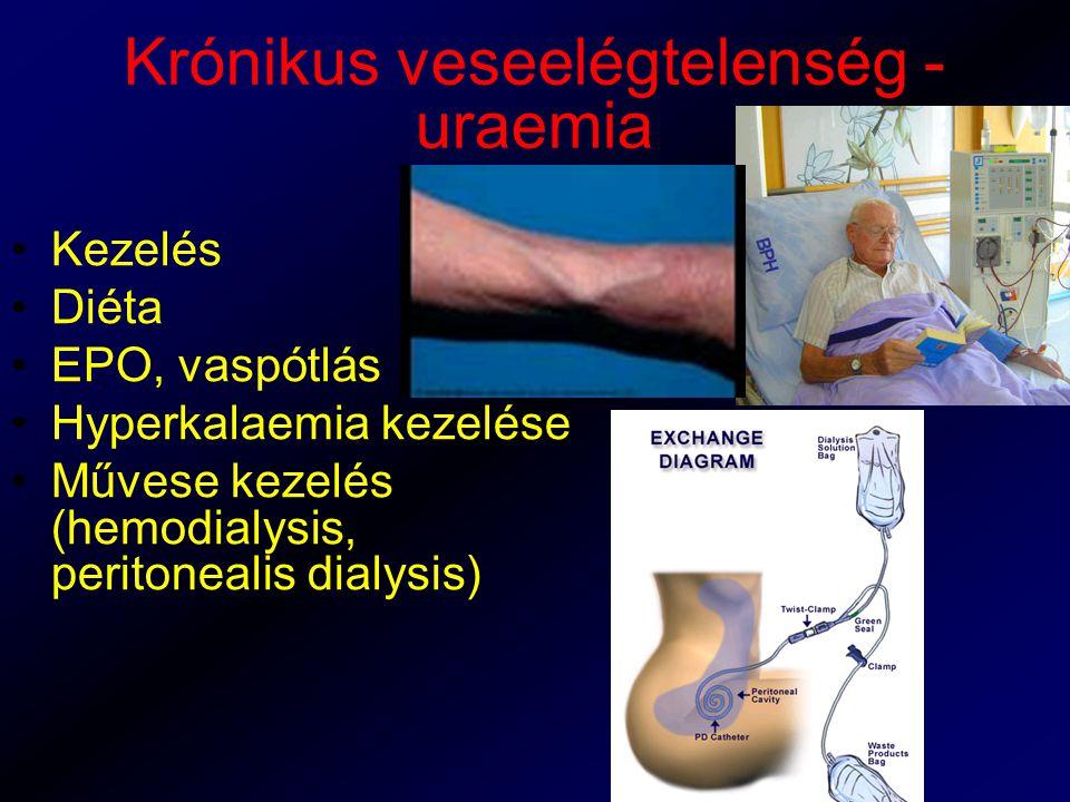 Krónikus veseelégtelenség - uraemia Kezelés Diéta EPO, vaspótlás Hyperkalaemia kezelése Művese kezelés (hemodialysis, peritonealis dialysis)
