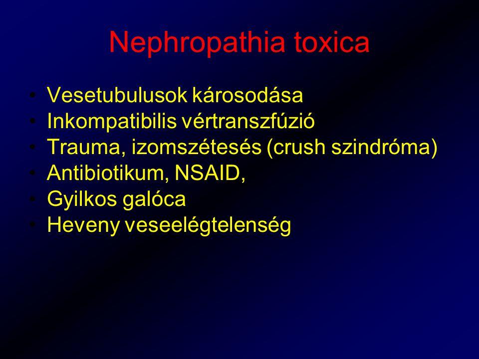 Nephropathia toxica Vesetubulusok károsodása Inkompatibilis vértranszfúzió Trauma, izomszétesés (crush szindróma) Antibiotikum, NSAID, Gyilkos galóca