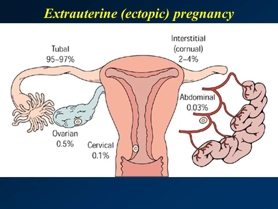 Extrauterine (ectopic) pregnancy