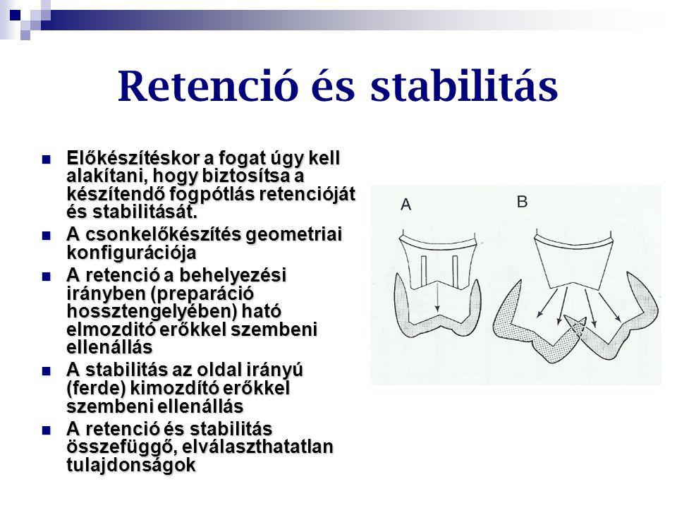 Retenció és stabilitás Előkészítéskor a fogat úgy kell alakítani, hogy biztosítsa a készítendő fogpótlás retencióját és stabilitását. Előkészítéskor a