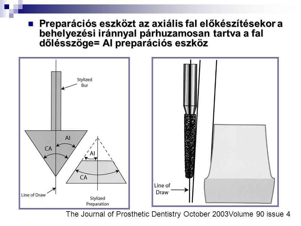The Journal of Prosthetic Dentistry October 2003Volume 90 issue 4 Preparációs eszközt az axiális fal előkészítésekor a behelyezési iránnyal párhuzamos