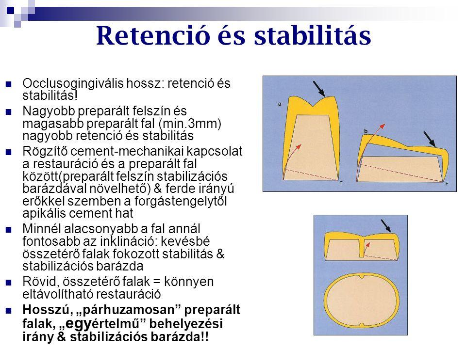 Occlusogingivális hossz: retenció és stabilitás! Nagyobb preparált felszín és magasabb preparált fal (min.3mm) nagyobb retenció és stabilitás Rögzítő
