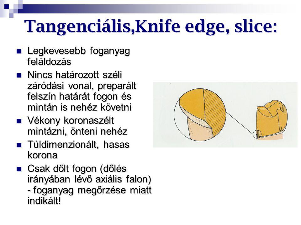 Tangenciális,Knife edge, slice: Legkevesebb foganyag feláldozás Legkevesebb foganyag feláldozás Nincs határozott széli záródási vonal, preparált felsz