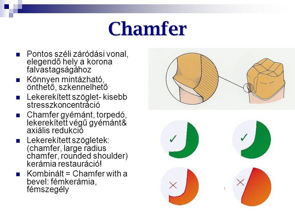 Chamfer Pontos széli záródási vonal, elegendő hely a korona falvastagságához Könnyen mintázható, önthető, szkennelhető Lekerekített szöglet- kisebb st
