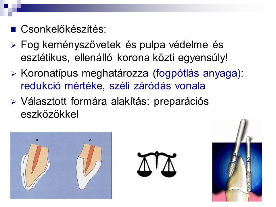 Csonkelőkészítés:  Fog keményszövetek és pulpa védelme és esztétikus, ellenálló korona közti egyensúly!  Koronatípus meghatározza (fogpótlás anyaga)