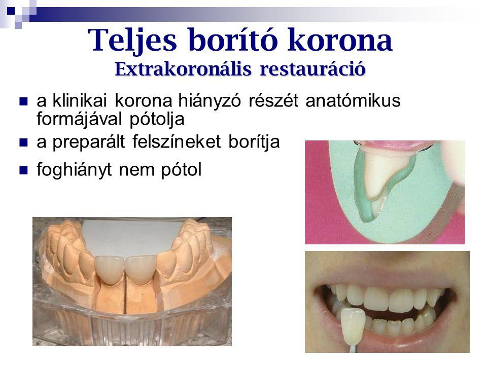 Extrakoronális restauráció Teljes borító korona Extrakoronális restauráció a klinikai korona hiányzó részét anatómikus formájával pótolja a preparált