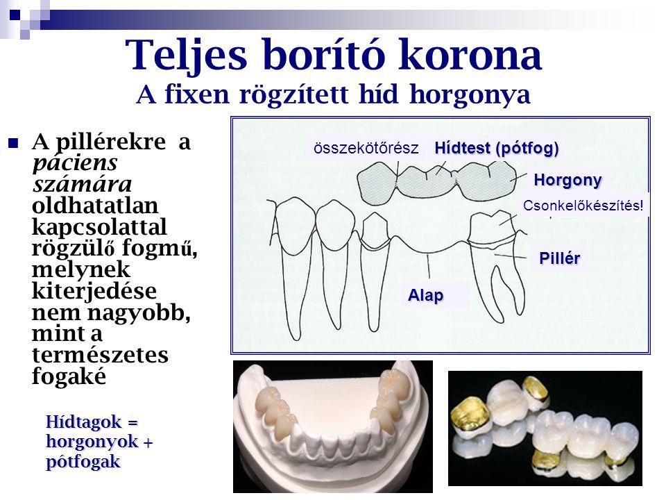 Teljes borító korona indikációi (rögzített fogpótlástan) Meggyengült fogszövetek védelme Esztétika helyreállítása vagy javítása Funkció helyreállítása Horgonykorona fix fogpótláshoz