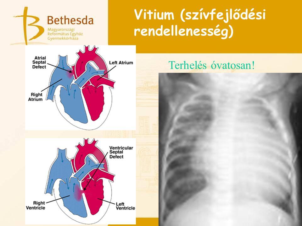 Vitium (szívfejlődési rendellenesség) Terhelés óvatosan!