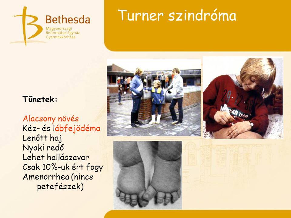 Turner szindróma Tünetek: Alacsony növés Kéz- és lábfejödéma Lenőtt haj Nyaki redő Lehet hallászavar Csak 10%-uk ért fogy Amenorrhea (nincs petefészek)