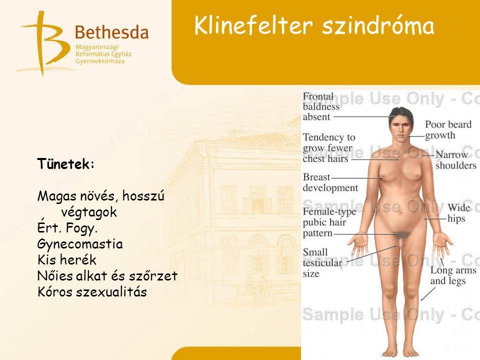 Klinefelter szindróma Tünetek: Magas növés, hosszú végtagok Ért.