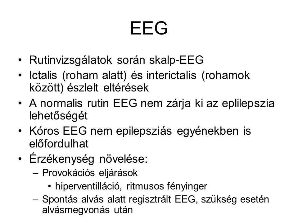 EEG Rutinvizsgálatok során skalp-EEG Ictalis (roham alatt) és interictalis (rohamok között) észlelt eltérések A normalis rutin EEG nem zárja ki az epl