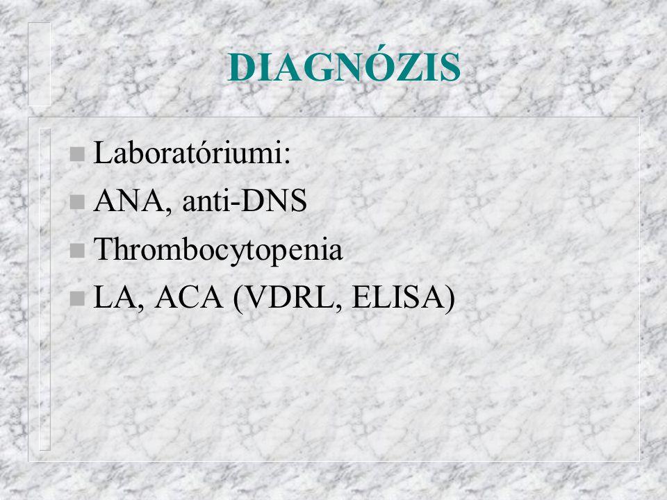 DIAGNÓZIS n Laboratóriumi: n ANA, anti-DNS n Thrombocytopenia n LA, ACA (VDRL, ELISA)