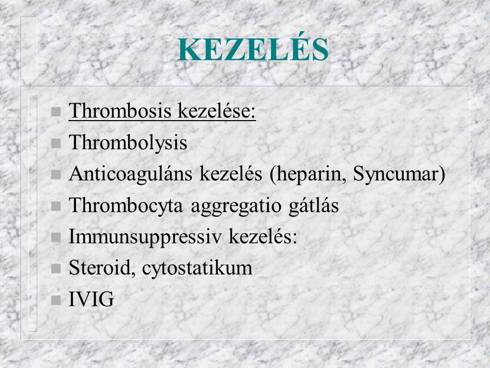 KEZELÉS n Thrombosis kezelése: n Thrombolysis n Anticoaguláns kezelés (heparin, Syncumar) n Thrombocyta aggregatio gátlás n Immunsuppressiv kezelés: n Steroid, cytostatikum n IVIG