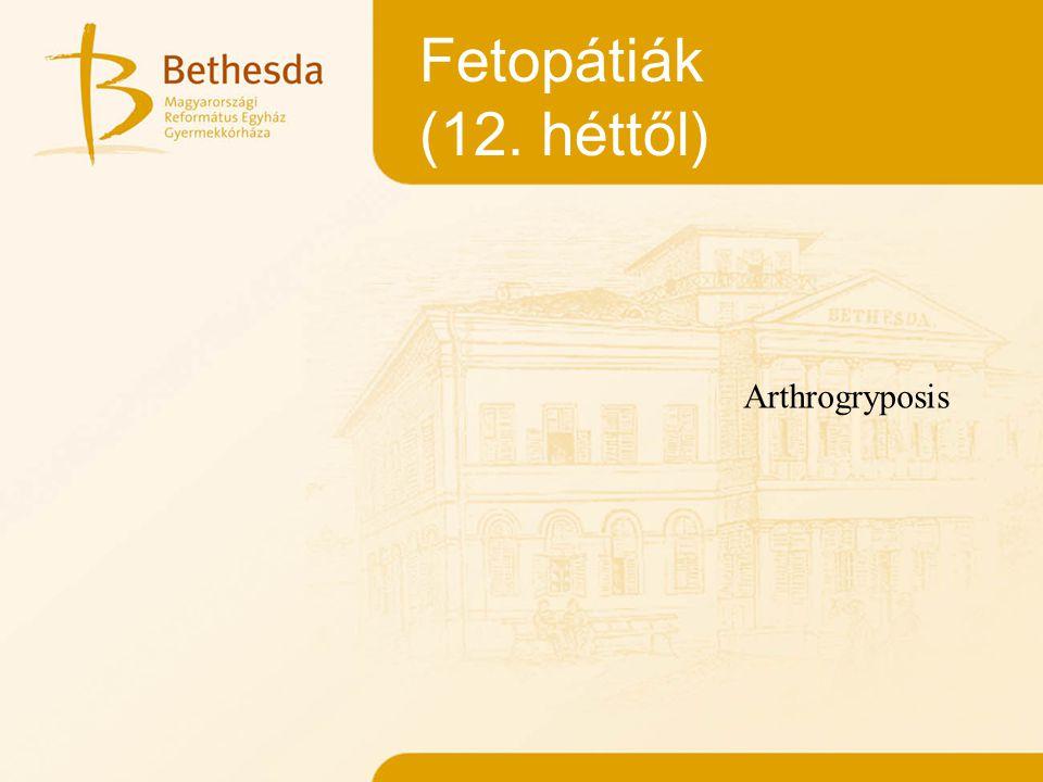 Fetopátiák (12.héttől) 1.FERTŐZŐ KÓROKOK 2. MÉRGEZÉSEK 3.