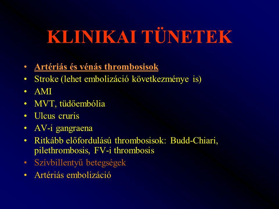 KLINIKAI TÜNETEK Artériás és vénás thrombosisok Stroke (lehet embolizáció következménye is) AMI MVT, tüdőembólia Ulcus cruris AV-i gangraena Ritkább e