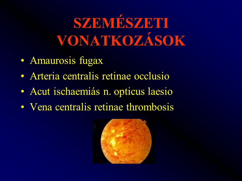 SZEMÉSZETI VONATKOZÁSOK Amaurosis fugax Arteria centralis retinae occlusio Acut ischaemiás n. opticus laesio Vena centralis retinae thrombosis