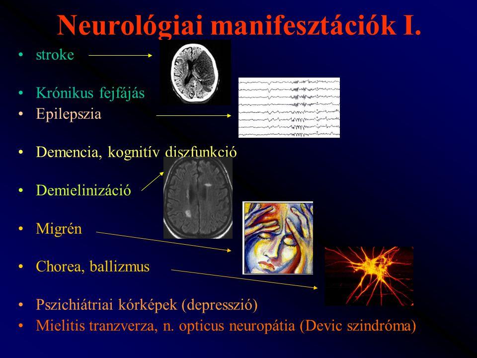 Neurológiai manifesztációk I. stroke Krónikus fejfájás Epilepszia Demencia, kognitív diszfunkció Demielinizáció Migrén Chorea, ballizmus Pszichiátriai