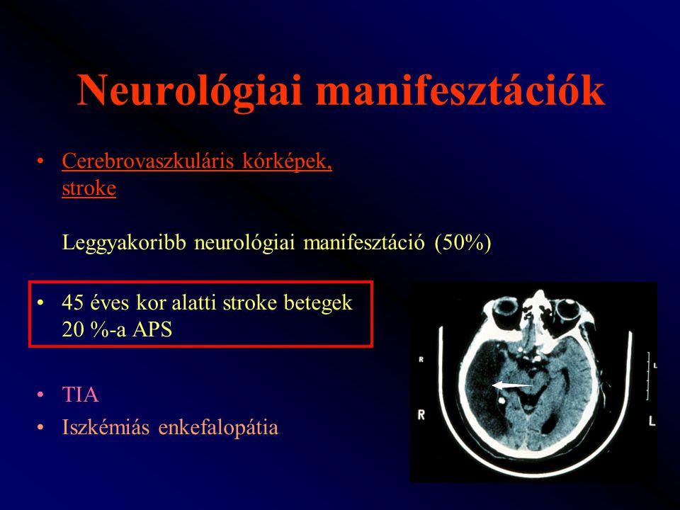 Neurológiai manifesztációk Cerebrovaszkuláris kórképek, stroke Leggyakoribb neurológiai manifesztáció (50%) 45 éves kor alatti stroke betegek 20 %-a A