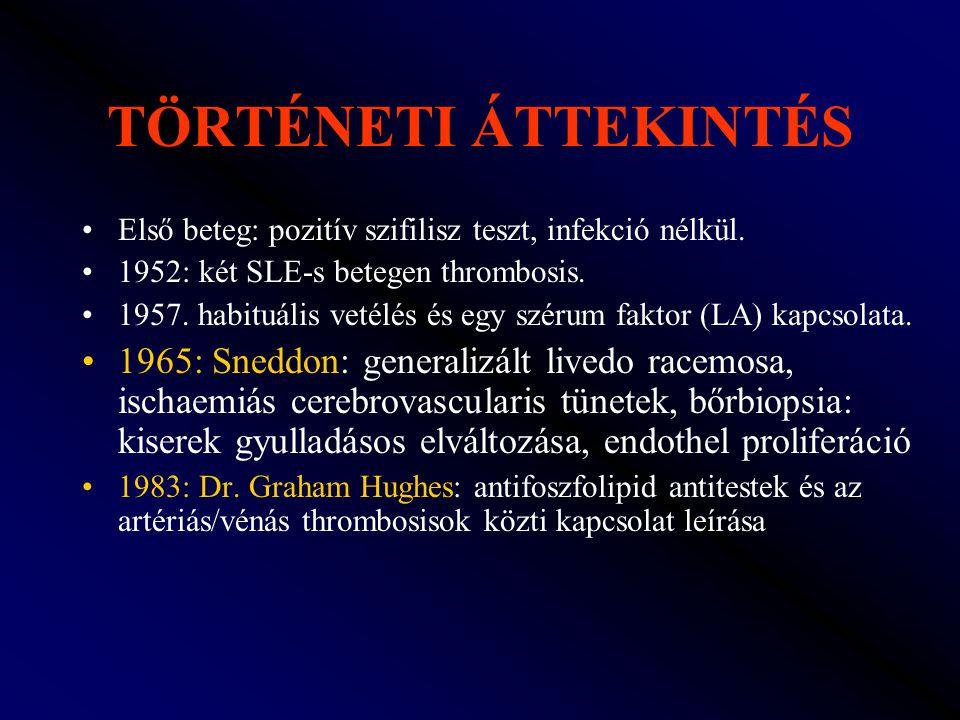 TÖRTÉNETI ÁTTEKINTÉS Első beteg: pozitív szifilisz teszt, infekció nélkül. 1952: két SLE-s betegen thrombosis. 1957. habituális vetélés és egy szérum