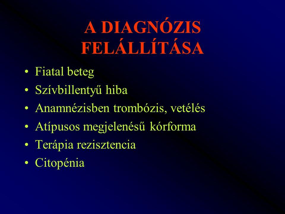 A DIAGNÓZIS FELÁLLÍTÁSA Fiatal beteg Szívbillentyű hiba Anamnézisben trombózis, vetélés Atípusos megjelenésű kórforma Terápia rezisztencia Citopénia