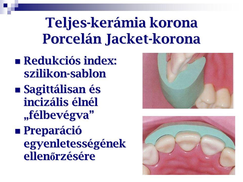 """Teljes-kerámia korona Porcelán Jacket-korona Redukciós index: szilikon-sablon Redukciós index: szilikon-sablon Sagittálisan és incizális élnél """"félbev"""