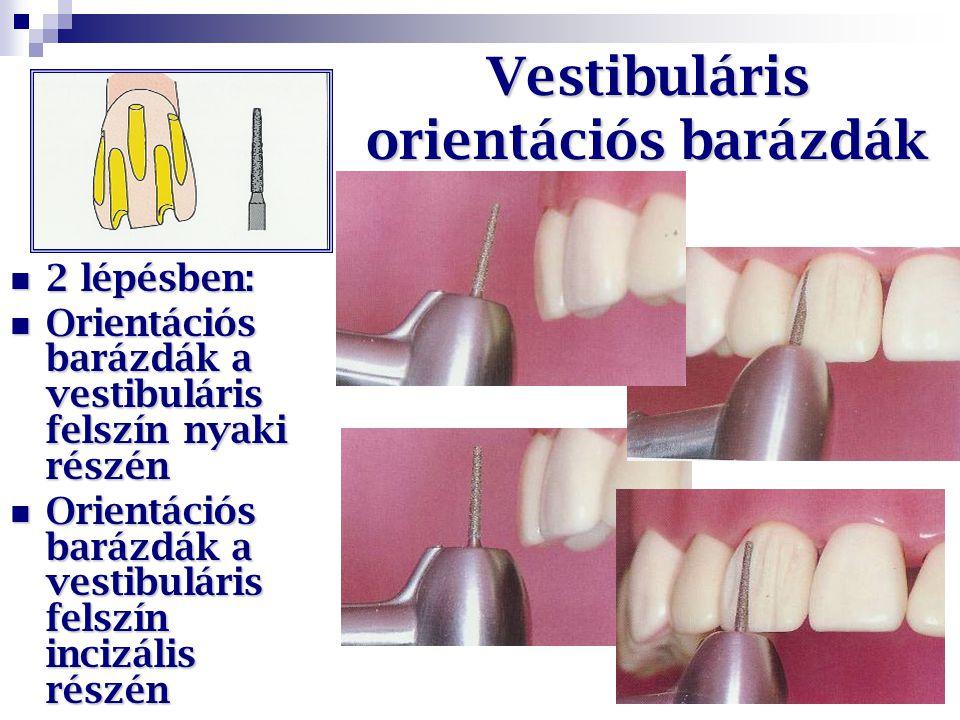 Vestibuláris orientációs barázdák 2 lépésben: 2 lépésben: Orientációs barázdák a vestibuláris felszín nyaki részén Orientációs barázdák a vestibuláris
