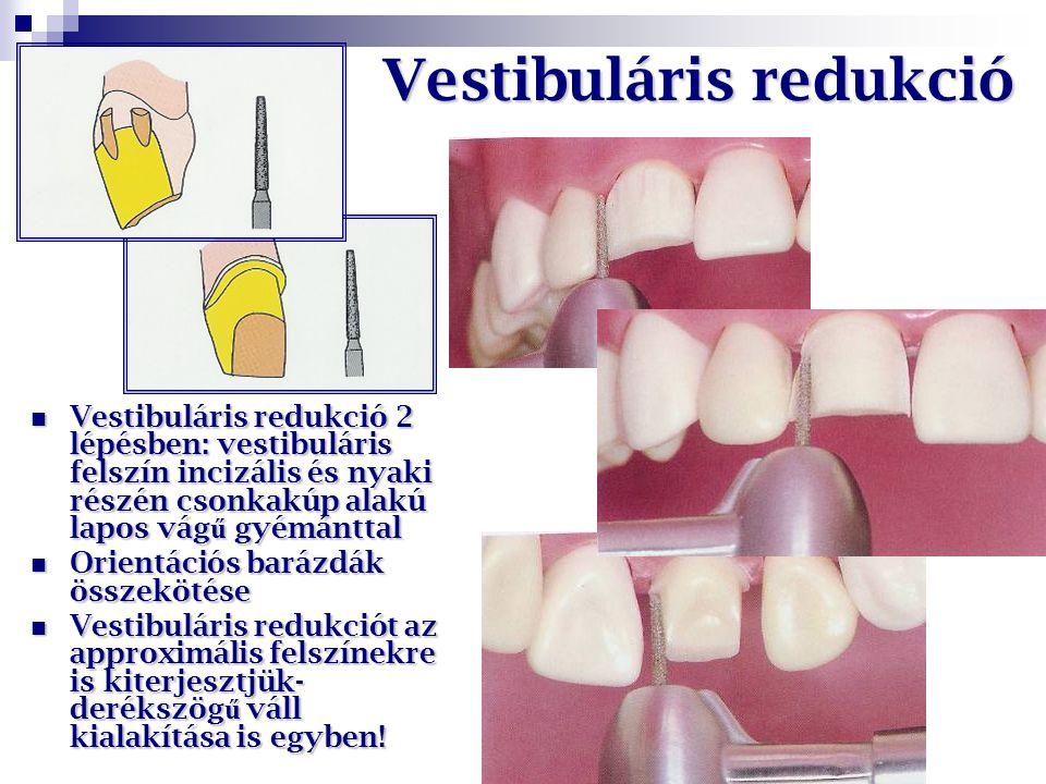Vestibuláris redukció Vestibuláris redukció 2 lépésben: vestibuláris felszín incizális és nyaki részén csonkakúp alakú lapos vág ű gyémánttal Vestibul