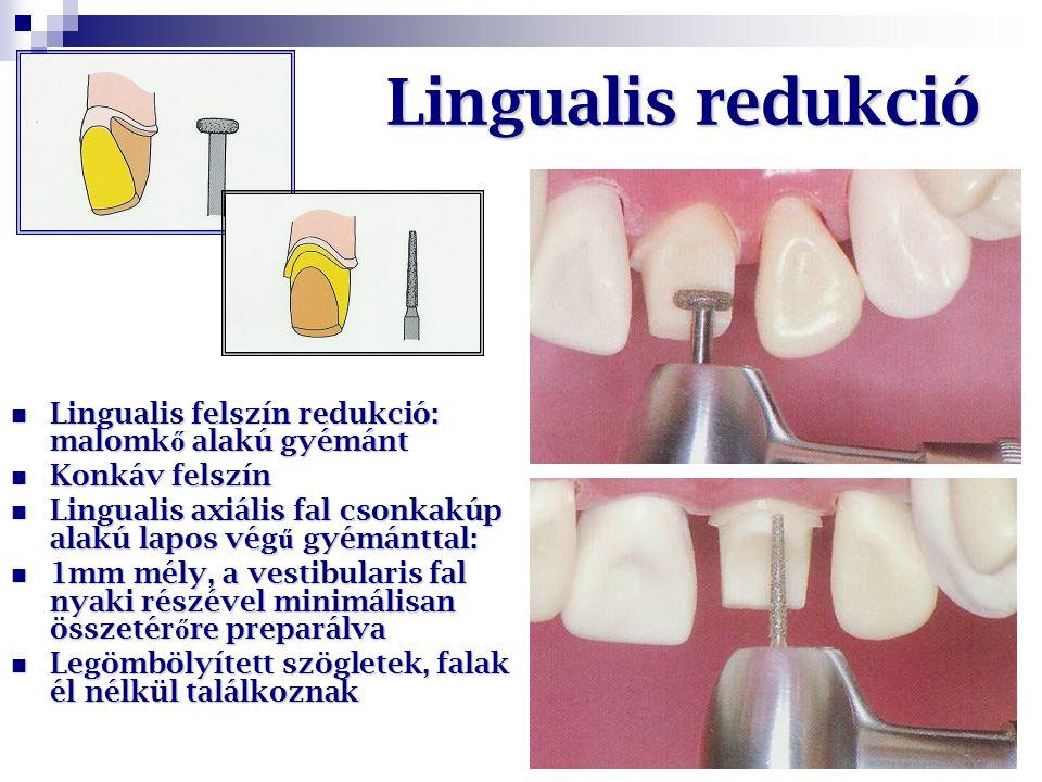 Lingualis redukció Lingualis felszín redukció: malomk ő alakú gyémánt Lingualis felszín redukció: malomk ő alakú gyémánt Konkáv felszín Konkáv felszín