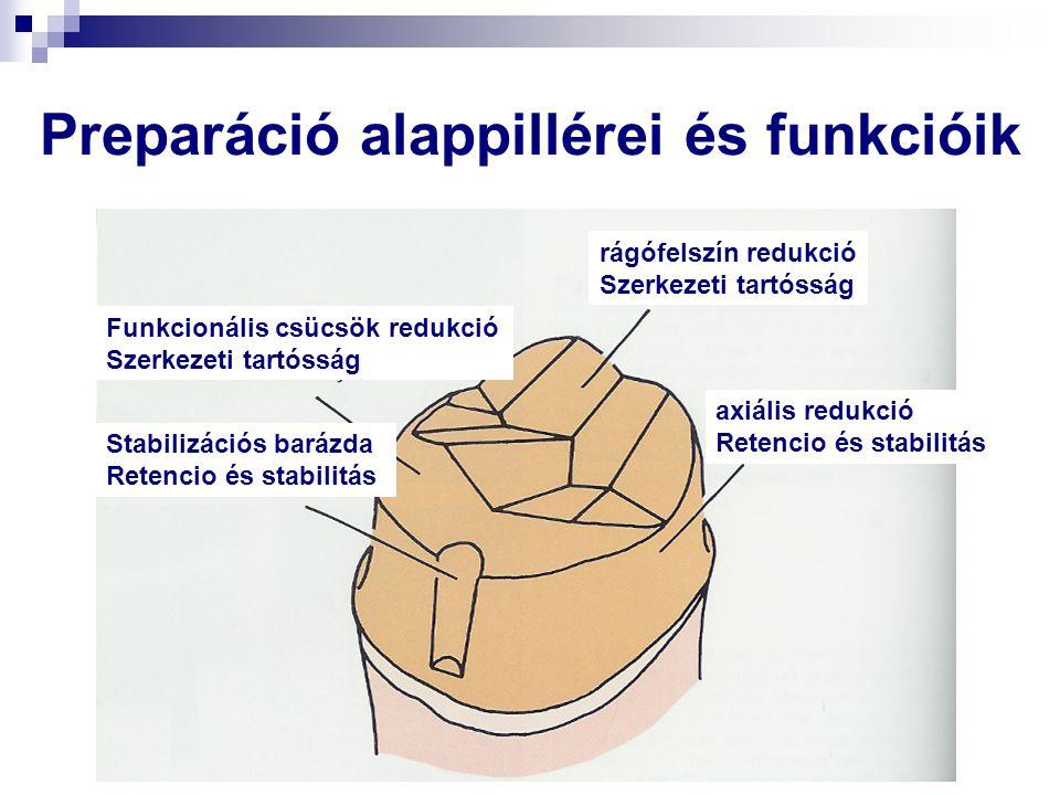Preparáció alappillérei és funkcióik axiális redukció Retencio és stabilitás rágófelszín redukció Szerkezeti tartósság Funkcionális csücsök redukció S