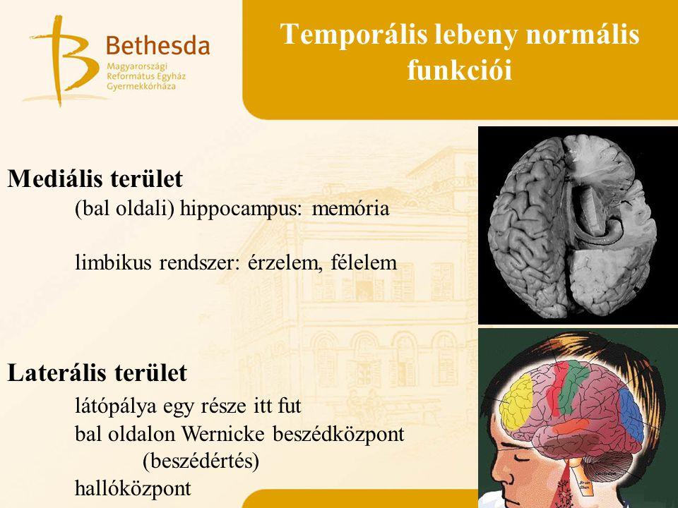 Temporális lebeny normális funkciói Mediális terület (bal oldali) hippocampus: memória limbikus rendszer: érzelem, félelem Laterális terület látópálya
