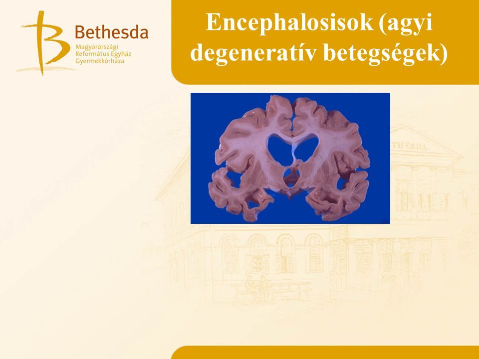 Encephalosisok (agyi degeneratív betegségek)