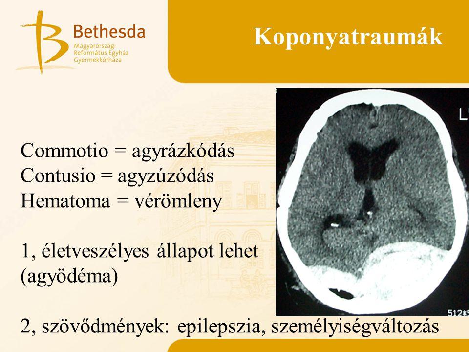 Koponyatraumák Commotio = agyrázkódás Contusio = agyzúzódás Hematoma = vérömleny 1, életveszélyes állapot lehet (agyödéma) 2, szövődmények: epilepszia, személyiségváltozás