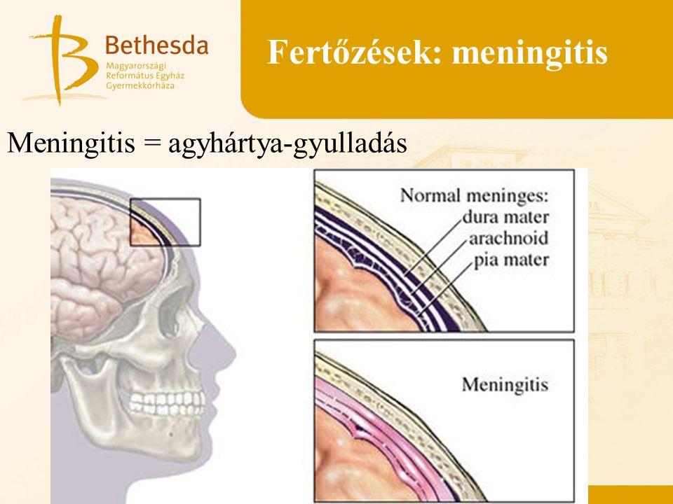 Fertőzések: meningitis Meningitis = agyhártya-gyulladás