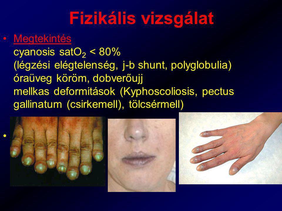 Fizikális vizsgálat Megtekintés cyanosis satO 2 < 80% (légzési elégtelenség, j-b shunt, polyglobulia) óraüveg köröm, dobverőujj mellkas deformitások (